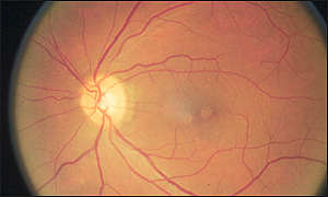 Eclipse-damaged retina