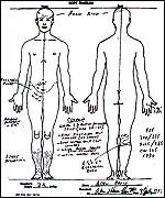 [ image: No evidence of  blood is indicated on the official body diagram]