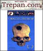[ image: Trepan.com tells the history of trepanation]