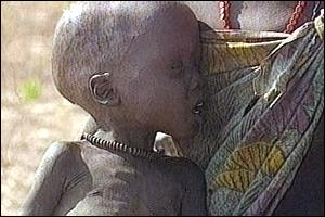 image: [ Malnutrition is rife after weeks without aid ]