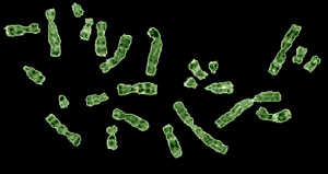 Human chromosomes - contentious coils of DNA