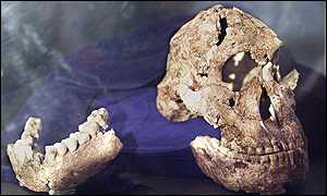 Early hominid skull and jaw
