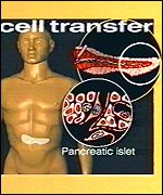 pancreas cell transfer