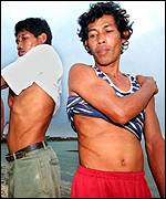 Philipines men display the scars from kidney removal operations