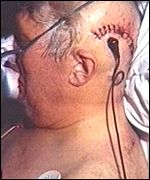 Wires coming out of patient's head