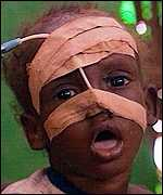 Ethiopian child given therapeutic feeding