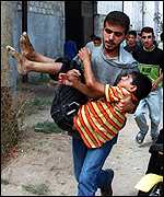 A wounded child is carried away