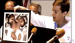 Dr Eric Strauch holding a picture of the conjoined twins at a press conference