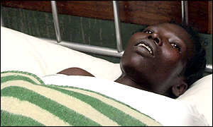 patient recovering at Lacor hospital in Gulu